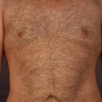 Liposuction - Case #2 After