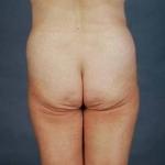 Liposuction - Case #3 Before