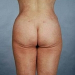 Liposuction - Case #3 After