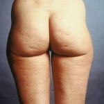Liposuction - Case #4 Before