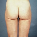 Liposuction - Case #4 After