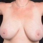 Breast Reduction -- Case #11 Before