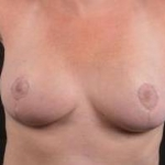 Breast Reduction -- Case #11 After