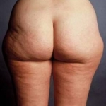 Liposuction - Case #5 Before