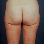 Liposuction - Case #5 After
