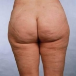 Liposuction - Case #6 After