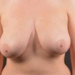 Breast Reduction with Mastopexy - Case #10 Before
