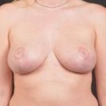 Breast Reduction with Mastopexy - Case #10 After