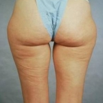 Liposuction - Case #8 Before