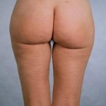 Liposuction - Case #8 After