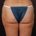 Liposuction - Case #9 Before