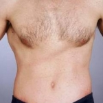 Liposuction - Case #10 After