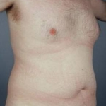 Liposuction - Case #11 Before
