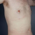 Liposuction - Case #11 After