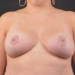 Breast Reduction - Case #9 After