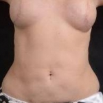 Liposuction - Case #12 After