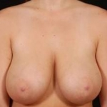Breast Reduction - Case #1 Before
