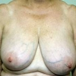 Breast Reduction - Case #2 Before