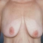 Breast Reduction - Case #5 Before