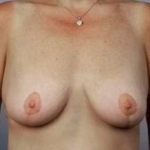 Breast Reduction - Case #5 After