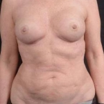 Liposuction - Case #14 Before