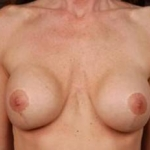 Immediate Breast Reconstruction - Flaps - Case #1 Before