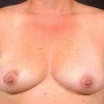Immediate Breast Reconstruction - Flaps - Case #3 Before