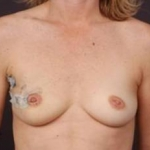 Immediate Breast Reconstruction - Flaps - Case #4 Before