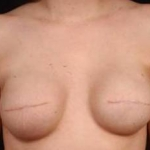 Immediate Breast Reconstruction - Flaps - Case #5 Before