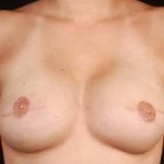 Immediate Breast Reconstruction - Flaps - Case #5 After