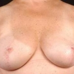 Prophylactic Mastectomy - Case #3 After