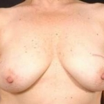 Prophylactic Mastectomy - Case #4 Before