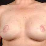 Prophylactic Mastectomy - Case #4 After
