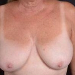 Breast Reduction - Case #7 Before