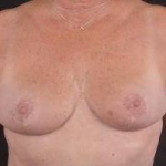 Breast Reduction - Case #7 After