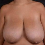 Breast Reduction - Case #8 Before