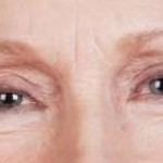 Blepharoplasty - Case #1 After