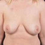 Immediate Breast Reconstruction - Nipple Sparring - Case #42 Before