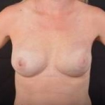 Immediate Breast Reconstruction - Nipple Sparring - Case #42 After