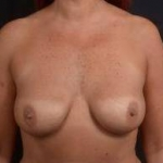 Immediate Breast Reconstruction - Nipple Sparring - Case #41 Before