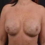 Immediate Breast Reconstruction - Nipple Sparring - Case #41 After