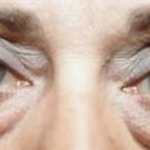 Blepharoplasty - Case #3 Before