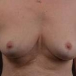 Mastopexy - Case #26 After