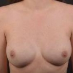 Immediate Breast Reconstruction - Nipple Sparring - Case #36 After