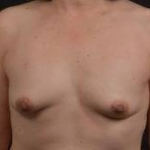 Immediate Breast Reconstruction - Nipple Sparring - Case #47 Before