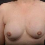 Immediate Breast Reconstruction - Nipple Sparring - Case #47 After