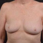 Immediate Breast Reconstruction - Nipple Sparring - Case #46 Before