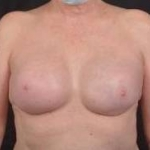 Immediate Breast Reconstruction - Nipple Sparring - Case #46 After