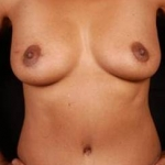 Mastopexy - Case #1 After