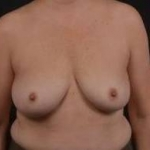Immediate Breast Reconstruction - Nipple Sparring - Case #39 Before